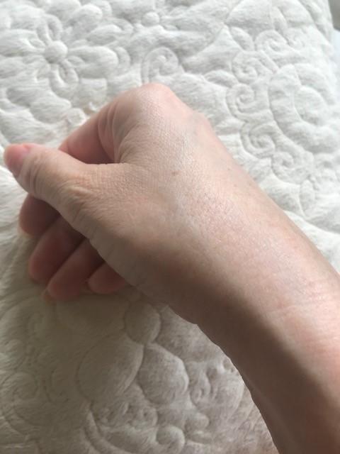 3週間後の右手