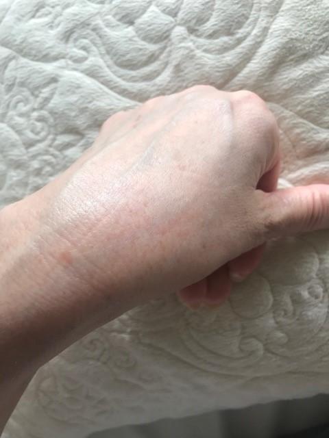 左手のシミ3週間後